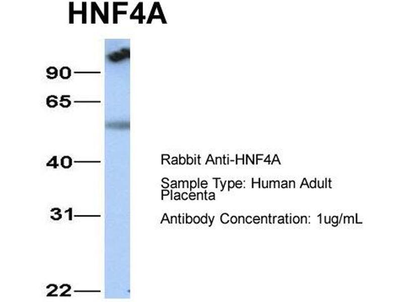 Western Blotting (WB) image for anti-HNF4A antibody (Hepatocyte Nuclear Factor 4, alpha) (N-Term) (ABIN182453)