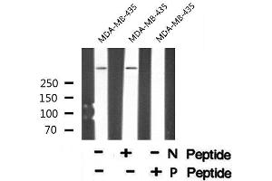 Image no. 1 for anti-Protein Kinase, DNA-Activated, Catalytic Polypeptide (PRKDC) (pSer2612) antibody (ABIN6271260)