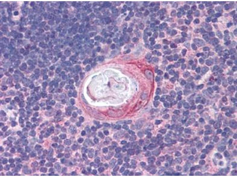 Immunohistochemistry (Paraffin-embedded Sections) (IHC (p)) image for anti-EML2 antibody (Echinoderm Microtubule Associated Protein Like 2) (C-Term) (ABIN615868)