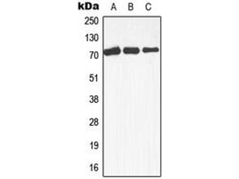 Western Blotting (WB) image for anti-MAP3K3 antibody (Mitogen-Activated Protein Kinase Kinase Kinase 3) (Center) (ABIN2706529)