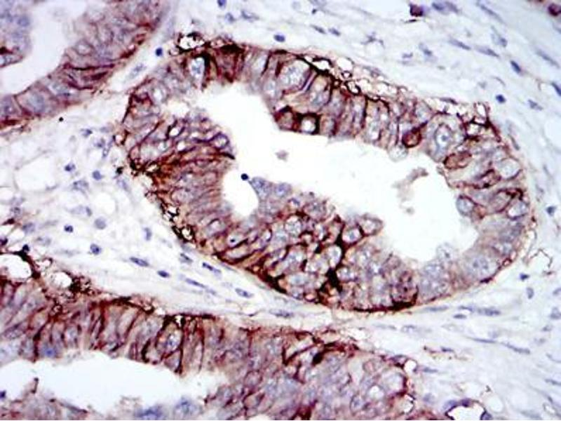 Immunohistochemistry (IHC) image for anti-Insulin-Like Growth Factor 1 Receptor (IGF1R) (AA 1101-1367) antibody (ABIN969207)