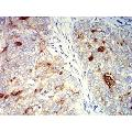 anti-MUC1 antibody (Mucin 1, Cell Surface Associated) (AA 66-175)