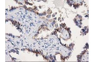 Immunohistochemistry (Paraffin-embedded Sections) (IHC (p)) image for anti-SOCS3 Antikörper (Suppressor of Cytokine Signaling 3) (ABIN4355048)