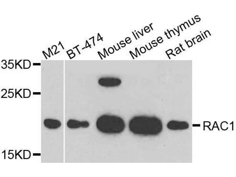 Western Blotting (WB) image for anti-RAC1 antibody (ABIN6146616)