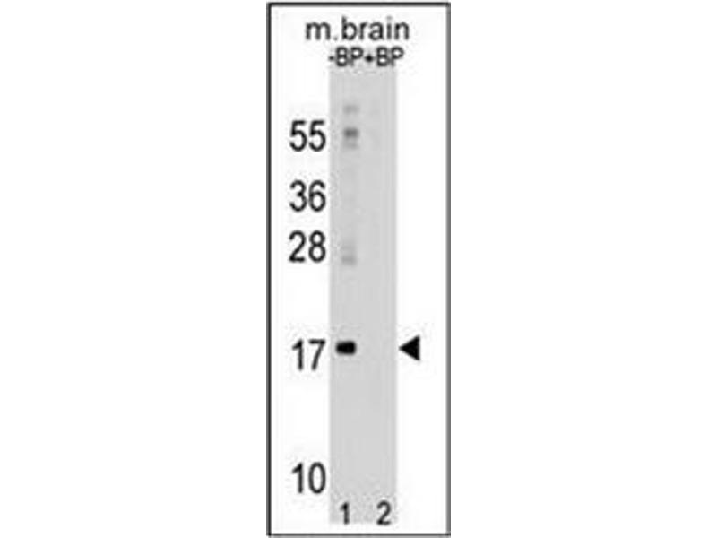 Western Blotting (WB) image for anti-Microtubule-Associated Protein 1 Light Chain 3 alpha (MAP1LC3A) (AA 1-30), (N-Term) antibody (ABIN1449594)