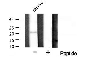 Image no. 2 for anti-BCL2-Associated X Protein (BAX) antibody (ABIN6260205)