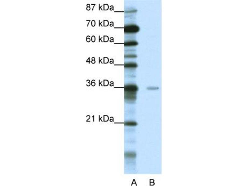 Western Blotting (WB) image for anti-Methyl-CpG Binding Domain Protein 2 (MBD2) (Middle Region) antibody (ABIN183889)