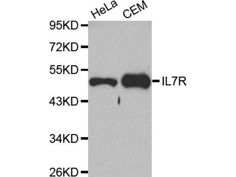Western Blotting (WB) image for anti-Interleukin 7 Receptor (IL7R) antibody (ABIN1873219)