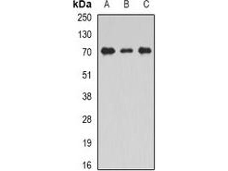 Western Blotting (WB) image for anti-Syntaxin Binding Protein 2 (STXBP2) antibody (ABIN2967132)