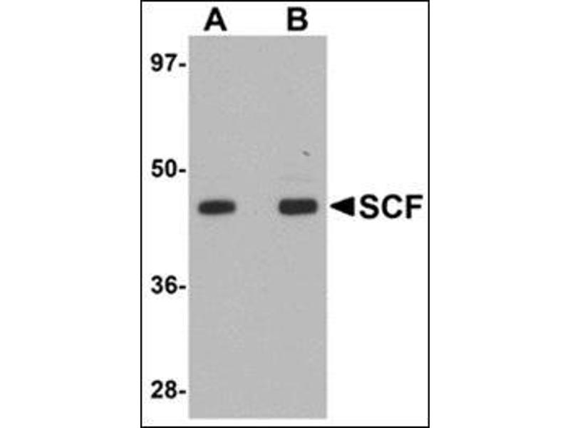 Western Blotting (WB) image for anti-KIT Ligand antibody (KITLG) (Center) (ABIN500684)