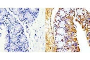Immunohistochemistry (Paraffin-embedded Sections) (IHC (p)) image for anti-TUBB antibody (Tubulin, beta) (N-Term) (ABIN4284184)
