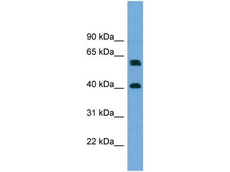 Western Blotting (WB) image for anti-Telomeric Repeat Binding Factor 2, Interacting Protein (TERF2IP) (Middle Region) antibody (ABIN2787164)