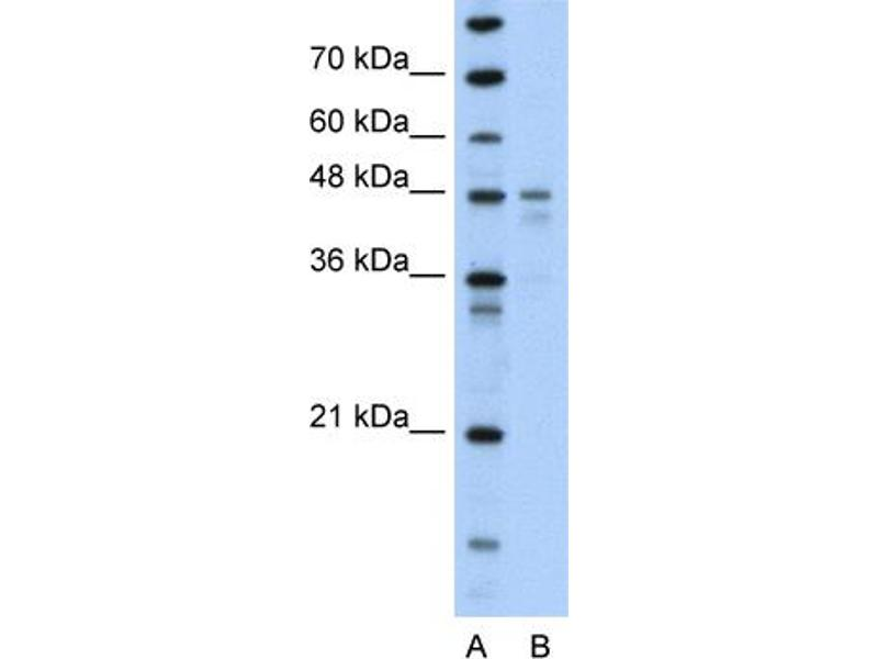 Western Blotting (WB) image for anti-PDK4 antibody (Pyruvate Dehydrogenase Kinase, Isozyme 4) (N-Term) (ABIN309673)