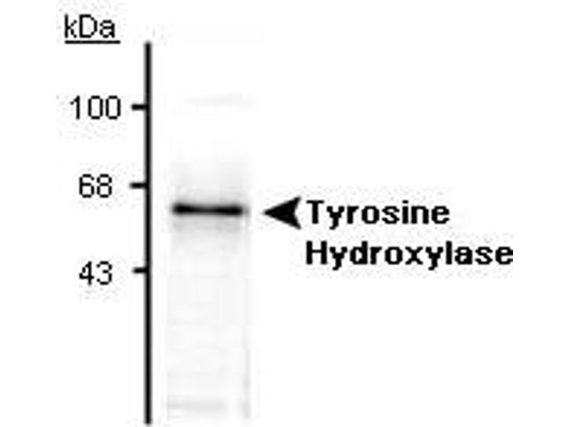 Western Blotting (WB) image for anti-tyrosine Hydroxylase (TH) antibody (ABIN152459)