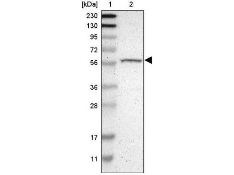 Western Blotting (WB) image for anti-RPS6KB2 antibody (Ribosomal Protein S6 Kinase, 70kDa, Polypeptide 2) (ABIN4343182)