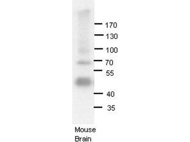 Western Blotting (WB) image for anti-Adenosine Deaminase, RNA-Specific, B1 (ADARB1) (N-Term) antibody (ABIN2778757)