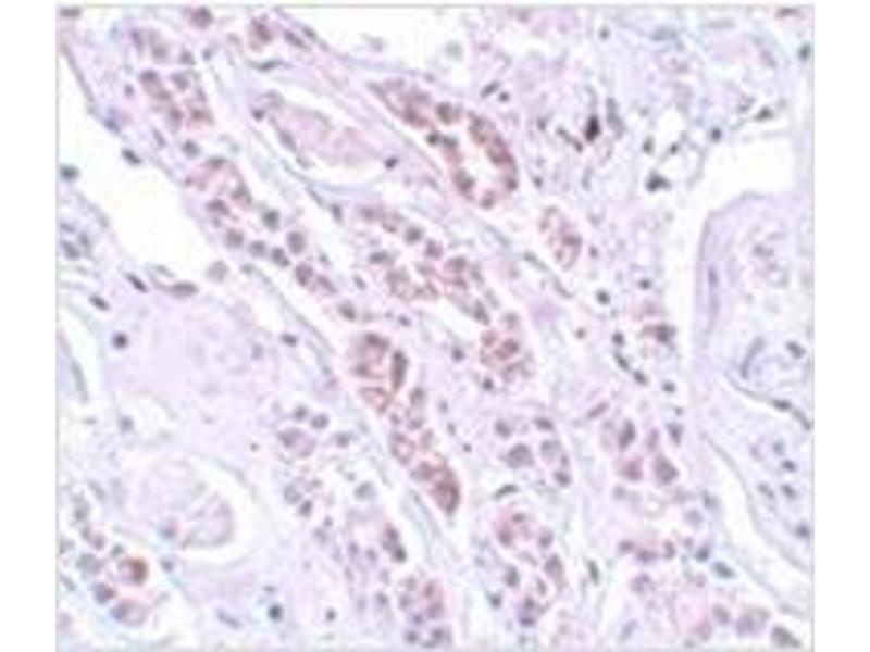 Immunohistochemistry (Paraffin-embedded Sections) (IHC (p)) image for anti-Tectonic Family Member 1 (TCTN1) (N-Term) antibody (ABIN783637)
