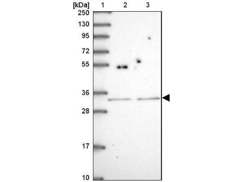 Western Blotting (WB) image for anti-SH2B Adaptor Protein 2 (SH2B2) antibody (ABIN4353230)