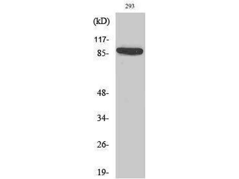 Western Blotting (WB) image for anti-Interleukin 4 Receptor (IL4R) (Ser540) antibody (ABIN3185177)