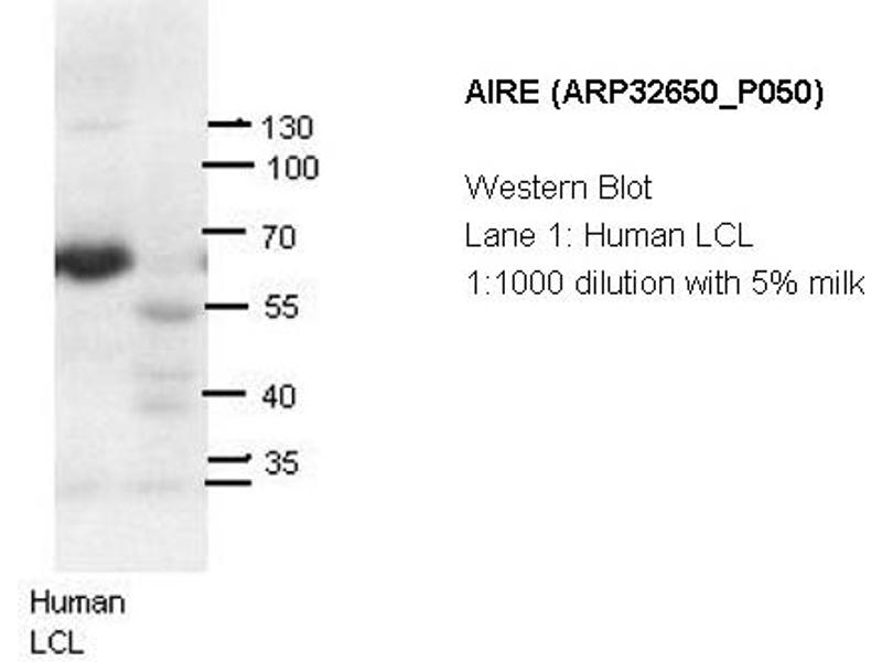 image for anti-Autoimmune Regulator (AIRE) (N-Term) antibody (ABIN2779777)