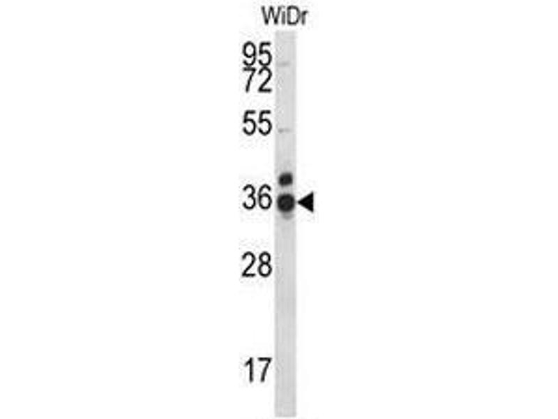 Western Blotting (WB) image for anti-Coiled-Coil Domain Containing 90B (CCDC90B) (AA 122-152), (Middle Region) antibody (ABIN951129)