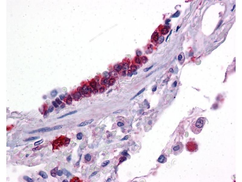 Immunohistochemistry (IHC) image for anti-Kruppel-Like Factor 2 (Lung) (KLF2) (Middle Region) antibody (ABIN2777573)