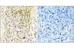 Immunohistochemistry (IHC) image for anti-MAP3K11 antibody (Mitogen-Activated Protein Kinase Kinase Kinase 11) (ABIN1533179)