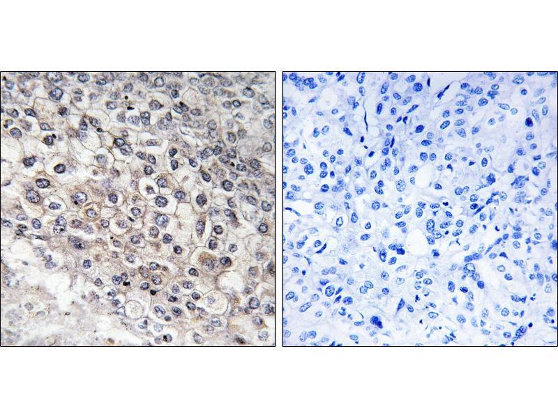 Image no. 1 for anti-Cytochrome P450, Family 2, Subfamily W, Polypeptide 1 (CYP2W1) antibody (ABIN1575969)