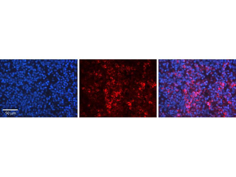 Immunohistochemistry (IHC) image for anti-Cyclin-Dependent Kinase 5, Regulatory Subunit 1 (p35) (CDK5R1) (C-Term) antibody (ABIN2779299)