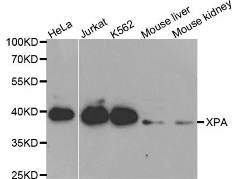 Image no. 3 for anti-Xeroderma Pigmentosum, Complementation Group A (XPA) antibody (ABIN6568812)