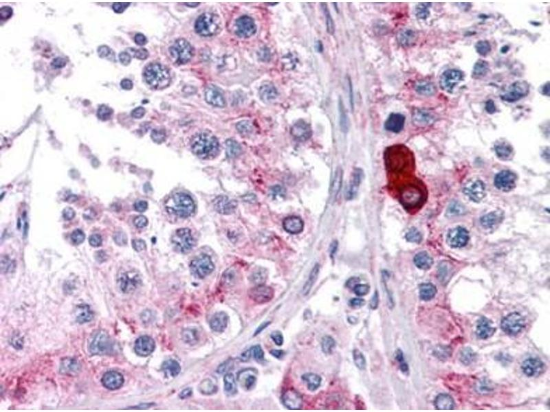 Immunohistochemistry (Paraffin-embedded Sections) (IHC (p)) image for anti-Doublecortin-Like Kinase 3 (DCLK3) (N-Term) antibody (ABIN615730)