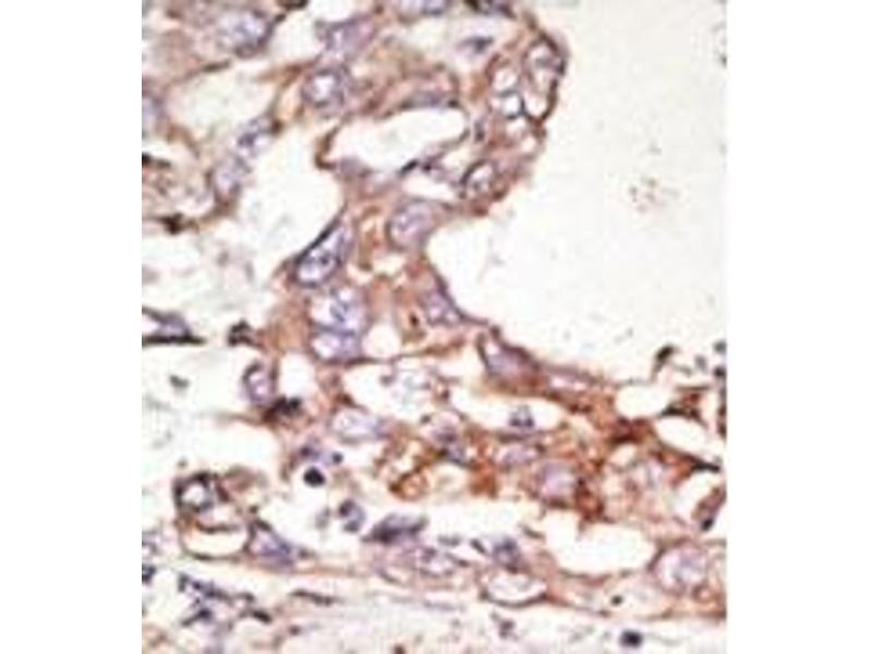 image for anti-SUMO4 antibody (SMT3 Suppressor of Mif Two 3 Homolog 4 (S. Cerevisiae)) (Middle Region) (ABIN356785)