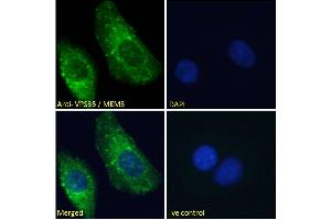 Image no. 4 for anti-Vacuolar Protein Sorting 35 (VPS35) (C-Term) antibody (ABIN185182)