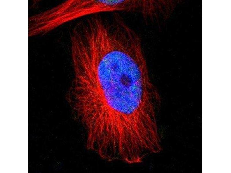 Immunofluorescence (IF) image for anti-RNA Binding Motif Protein 22 (RBM22) antibody (ABIN4349596)