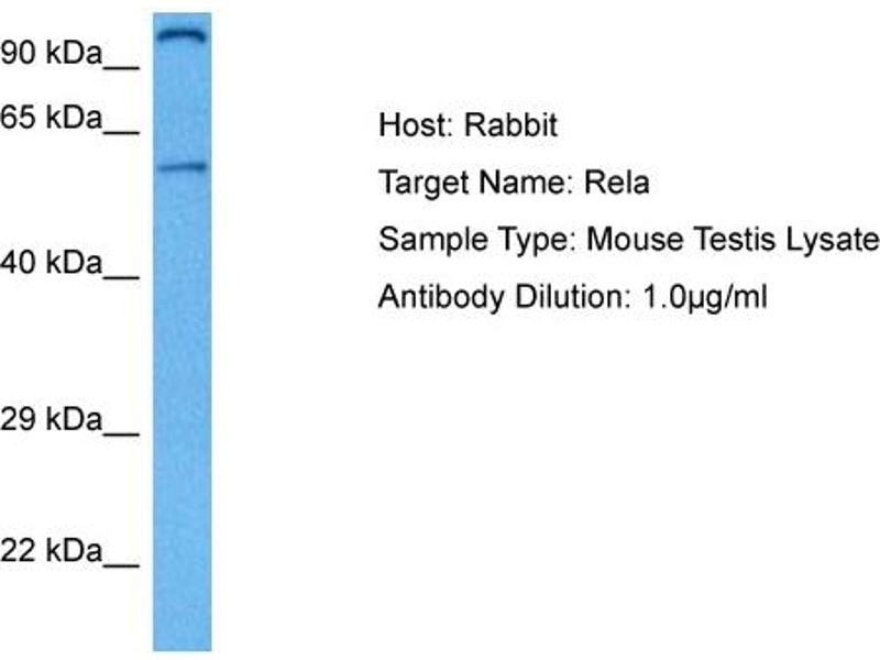Western Blotting (WB) image for anti-Nuclear Factor-KB P65 (NFkBP65) (Middle Region) antibody (ABIN2788884)