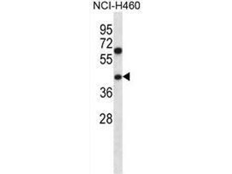 Western Blotting (WB) image for anti-TBC1 Domain Family, Member 22A (TBC1D22A) (AA 329-358), (C-Term) antibody (ABIN955093)