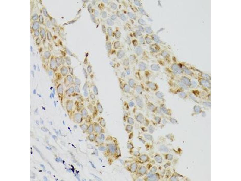 Image no. 1 for anti-TEK Tyrosine Kinase, Endothelial (TEK) antibody (ABIN1875053)