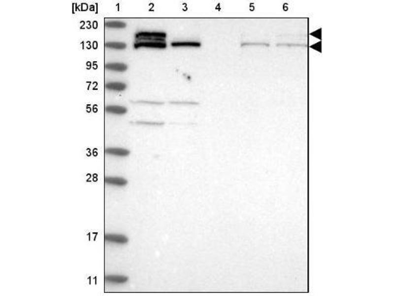 Western Blotting (WB) image for anti-CAP-GLY Domain Containing Linker Protein 1 (CLIP1) antibody (ABIN4299211)