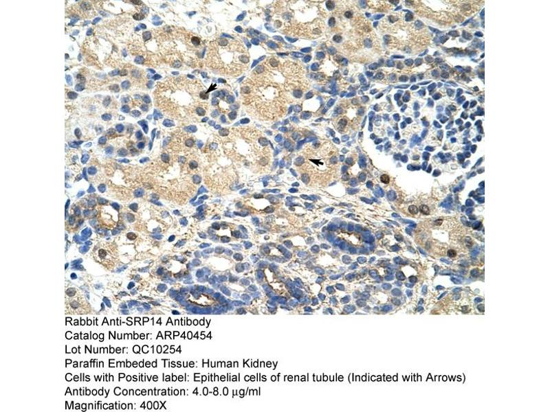 Immunohistochemistry (IHC) image for anti-Signal Recognition Particle 14kDa (Homologous Alu RNA Binding Protein) (SRP14) (N-Term) antibody (ABIN183958)