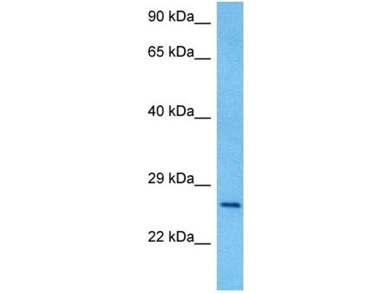 Image no. 3 for anti-Paired Box 4 (PAX4) (Middle Region) antibody (ABIN2779444)