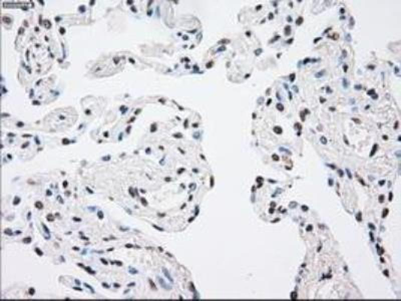 Immunohistochemistry (Paraffin-embedded Sections) (IHC (p)) image for anti-Mitogen-Activated Protein Kinase Kinase 4 (MAP2K4) antibody (ABIN4334806)