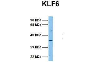 Image no. 2 for anti-Kruppel-Like Factor 6 (KLF6) (N-Term) antibody (ABIN2776378)