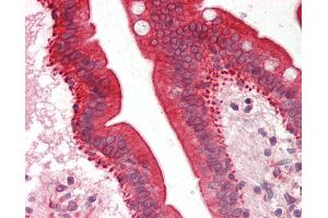 Image no. 1 for anti-Cytochrome P450, Family 3, Subfamily A, Polypeptide 5 (CYP3A5) (AA 83-132) antibody (ABIN6755350)