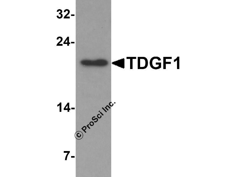 Image no. 1 for anti-Teratocarcinoma-Derived Growth Factor 1 (TDGF1) (N-Term) antibody (ABIN1077401)
