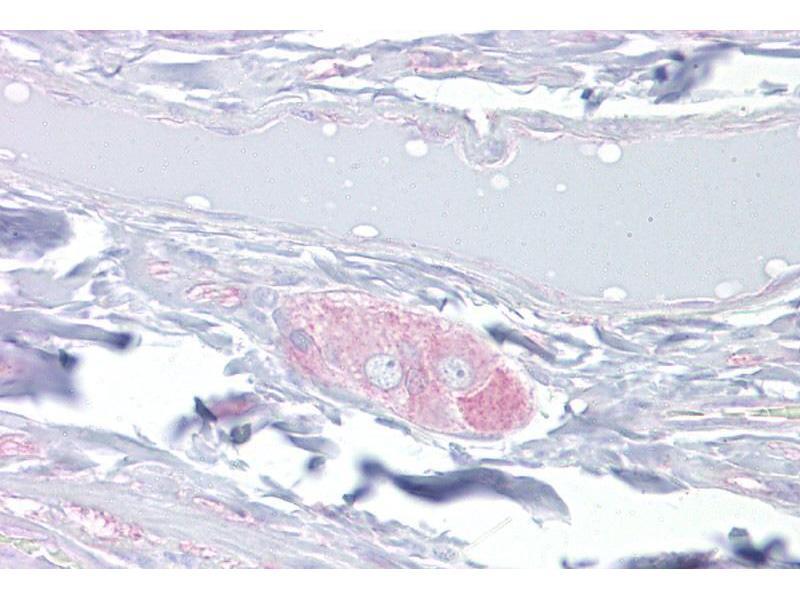 Immunohistochemistry (IHC) image for anti-Dihydropyrimidinase-Like 3 (DPYSL3) (Middle Region) antibody (ABIN503286)
