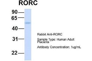 Image no. 1 for anti-RAR-Related Orphan Receptor C (RORC) (Middle Region) antibody (ABIN2777822)