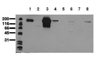 Western Blotting (WB) image for anti-HER2 antibody (V-Erb-B2 erythroblastic Leukemia Viral Oncogene Homolog 2, Neuro/glioblastoma Derived Oncogene Homolog (Avian)) (AA 860-880) (ABIN126788)