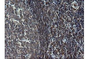 Immunohistochemistry (IHC) image for anti-Interferon Regulatory Factor 5 (IRF5) antibody (ABIN4327589)