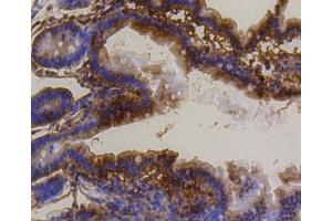 Immunohistochemistry (Paraffin-embedded Sections) (IHC (p)) image for anti-BCL2 Binding Component 3 (BBC3) (C-Term) antibody (ABIN5945348)