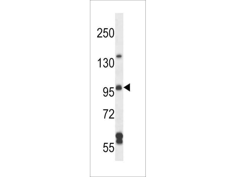 Image no. 1 for anti-rho Guanine Nucleotide Exchange Factor (GEF) 26 (ARHGEF26) (AA 378-406) antibody (ABIN5538661)